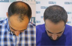 greffe-de-cheveux-calvitie